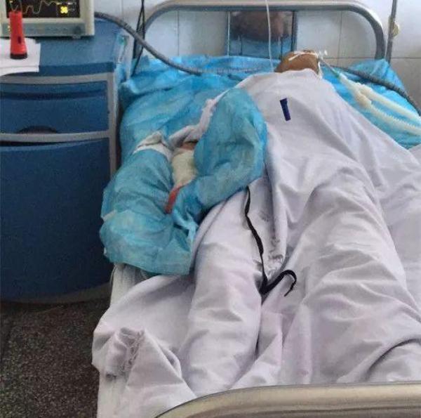 健康东安讯 近日, 东安县人民医院成功救治了一名被眼镜蛇咬伤的73岁